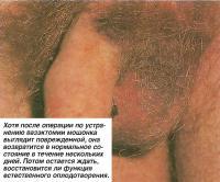 После операции по устранению мошонка выглядит поврежденной
