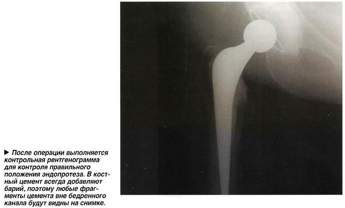 После операции выполняется контрольная рентгенограмма для контроля правильного положения эндопротеза