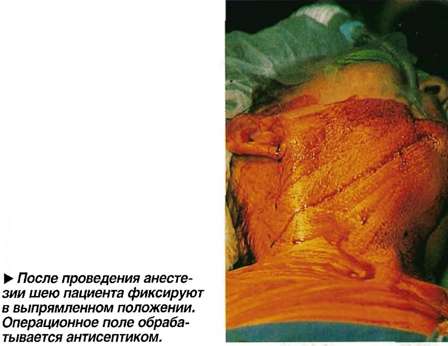 После проведения анестезии шею пациента фиксируют в выпрямленном положении