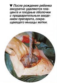 После рождения ребенка аккуратно удаляются плацента и плодные оболочки