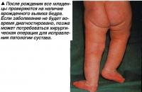 После рождения все младенцы проверяются на наличие врожденного вывиха бедра
