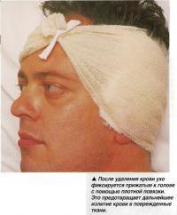 После удаления крови ухо фиксируется прижатым к голове
