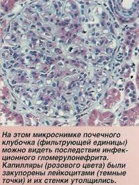 Последствия инфекционного гломерулонефрита