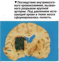 Последствия внутримозго-вого кровоизлияния