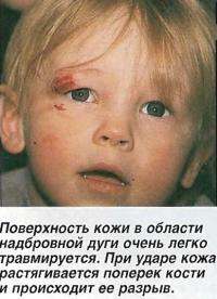 Поверхность кожи в области надбровной дуги очень легко травмируется