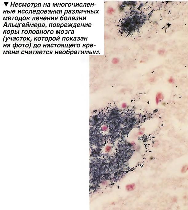 Повреждение коры головного мозга до настоящего времени считается необратимым