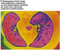 Повреждение легких вследствие эмфиземы