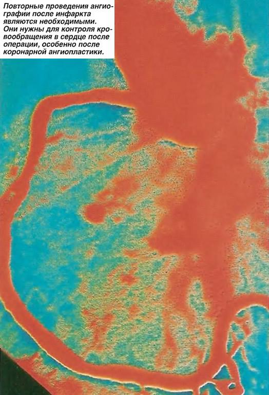 Повторные проведения ангиографии после инфаркта являются необходимыми