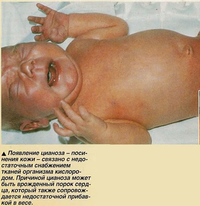 Появление цианоза - посинения кожи - связано с недостаточным снабжением тканей организма кислородом