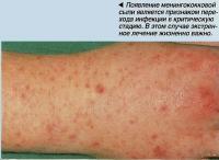 Появление менингококковой сыпи является признаком перехода инфекции в критическую стадию