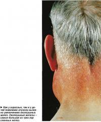 Появление опухоли вызвано увеличением околоушных желез