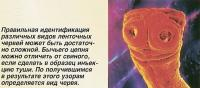 Правильная идентификация ленточных червей может быть достаточно сложной
