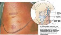 Предоперационные обследования, анестезия и первый надрез