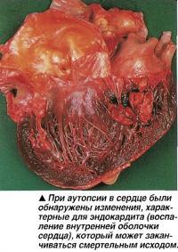 При аутопсии в сердце были обнаружены изменения, характерные для эндокардита