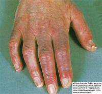 При болезни Рейно нарушается кровоснабжение верхних конечностей
