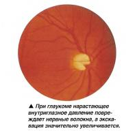 При глаукоме нарастающее внутриглазное давление повреждает нервные волокна