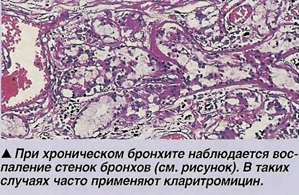 При хроническом бронхите наблюдается воспаление стенок бронхов