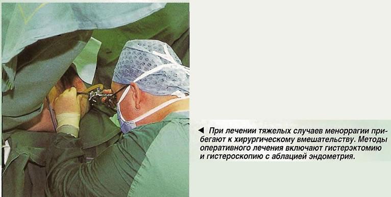 При лечении тяжелых случаев меноррагии прибегают к хирургическому вмешательству