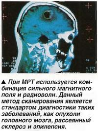 При МРТ используется комбинация сильного магнитного поля и радиоволн.
