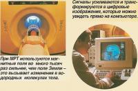 При МРТ используются магнитные поля во много тысяч раз сильнее, чем поле Земли