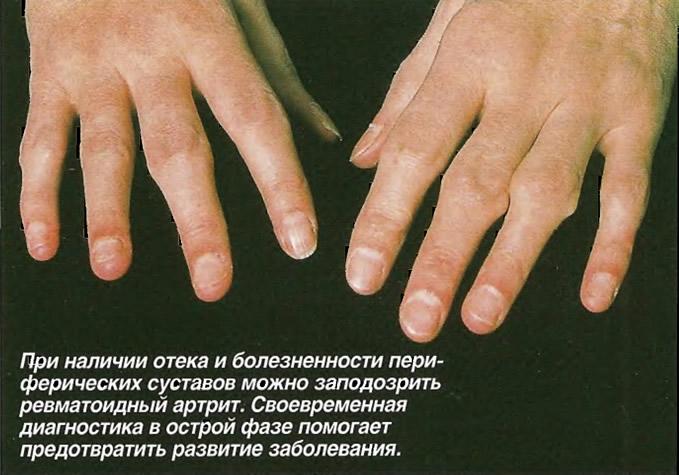 При наличии отека и болезненности суставов можно заподозрить ревматоидный артрит