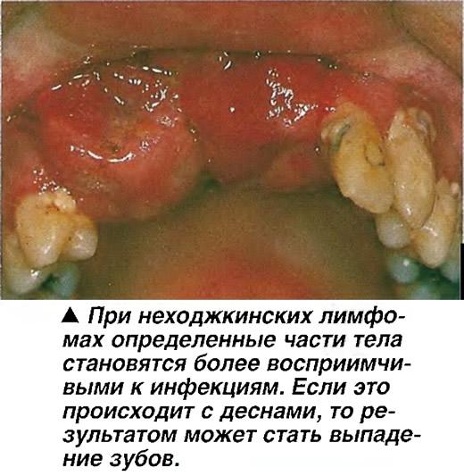При неходжкинских лимфомах определенные части тела становятся восприимчивыми к инфекциям