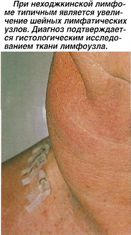 При неходжкинской лимфоме является увеличение шейных лимфатических узлов