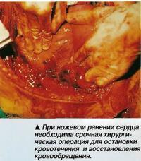 При ножевом ранении сердца необходима срочная хирургическая операция