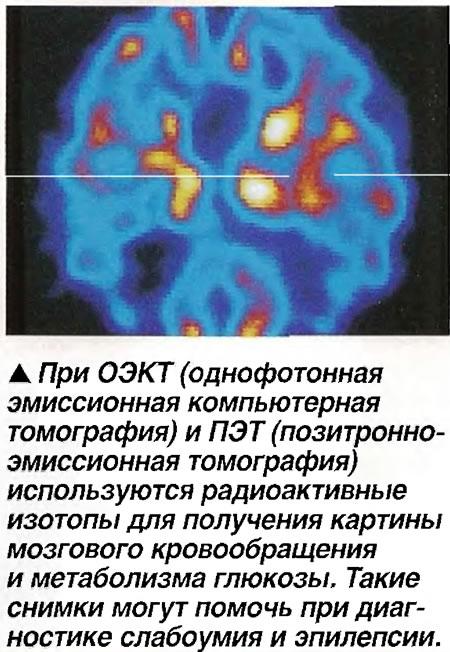 При ОЭКТ и ПЭТ используются радиоактивные изотопы
