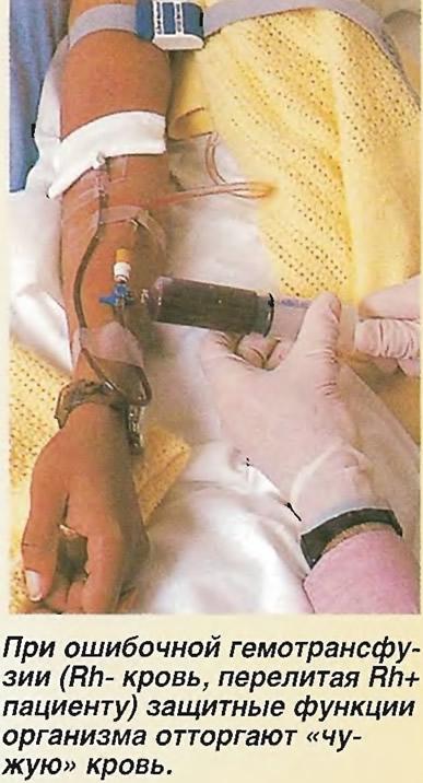 При ошибочной гемотрансфузии организм отторгают «чужую» кровь