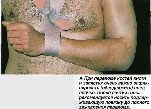 При переломе костей кисти и запястья очень важно зафиксировать (обездвижить) предплечье