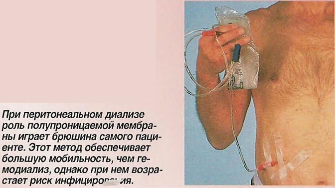 Cipro Peritoneal Dialysis
