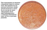 При подозрении на пищевое отравление берется анализ кала