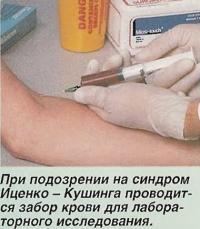 При подозрении на синдром Иценко-Кушинга проводится забор крови для исследования
