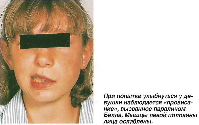 Паралич Белла
