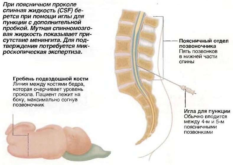 При поясничном проколе спинная жидкость (CSF) берется при помощи иглы