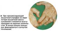 При прогрессирующей мышечной атрофии сухожилия становятся выступающими