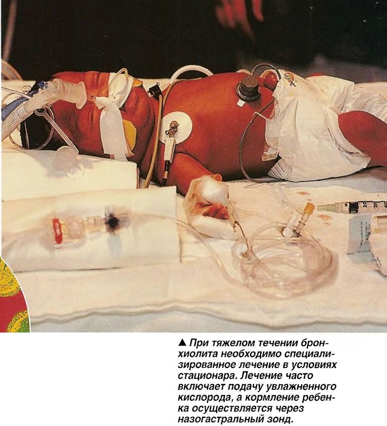 При тяжелом течении бронхиолита необходимо специализированное лечение в условиях стационара