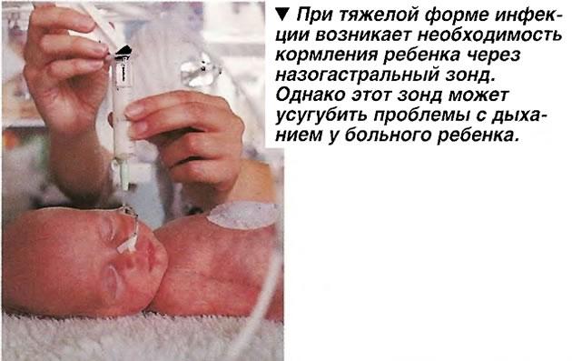При тяжелой форме инфекции возникает необходимость кормления ребенка через назогастральный зонд