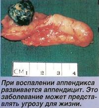 При воспалении аппендикса развивается аппендицит
