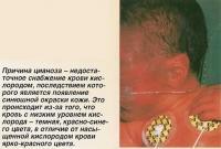 Причина цианоза - недостаточное снабжение крови кислородом