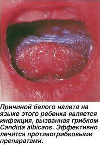Причиной белого налета на языке является инфекция, вызванная грибком Candida albicans