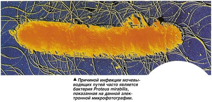 Причиной инфекции мочевыводящих путей часто является бактерия Proteus mirabilis