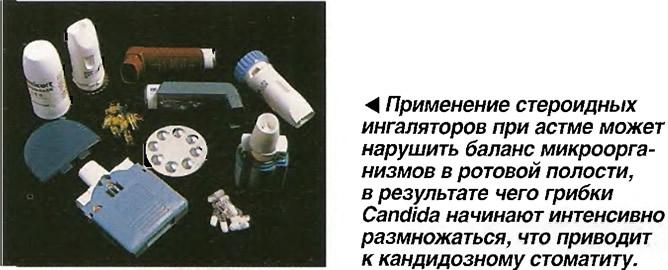 Применение стероидных ингаляторов при астме может нарушить баланс микроорганизмов