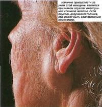 Припухлость за ухом является признаком опухоли околоушной слюнной железы