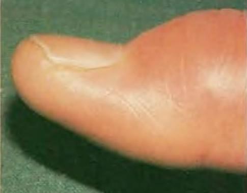 Приступ подагры на большом пальце