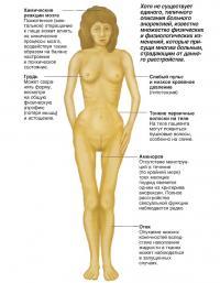 Признаки физических и физиологических изменений при анорексии