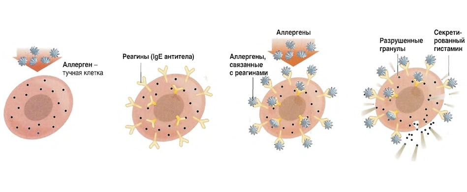 Процесс аллергической реакции