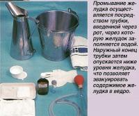 Промывание желудка осуществляется посредством трубки введенной через рот