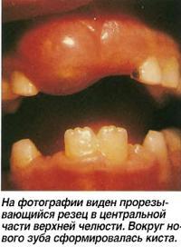 Прорезывающийся резец в центральной части верхней челюсти